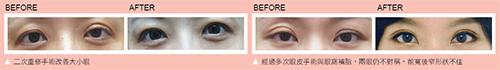 眼鼻重修手術