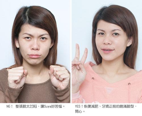 暴瘦+整牙=正妹瘦成猴子臉