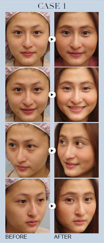 「眼袋黑眼圈手術」擺脫熊貓眼不復發