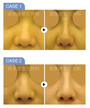 HOLD住五官吸睛點!「3D日式隆鼻」更適亞洲人鼻形