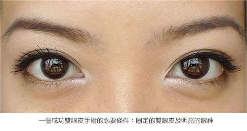 3D雙眼皮成形手術