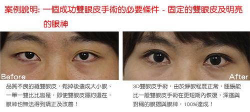 顛覆傳統雙眼皮手術的3D雙眼皮成形手術