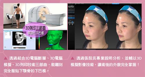 完美小臉體驗日記 首席諮詢師Iris的親身實證 3D列印下巴精雕術