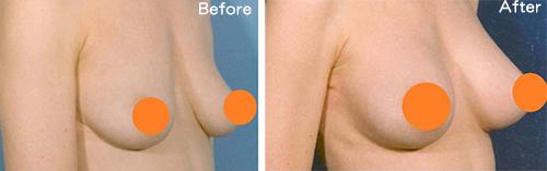 隆乳選擇多 如何挑選適合的手術方式