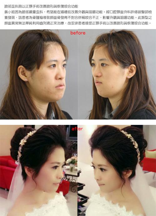 打造完美臉形比例  許妳第二張臉再次重生
